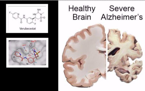 Alzheimer U0026 39 S Cure Likely After Successful Drug Trial