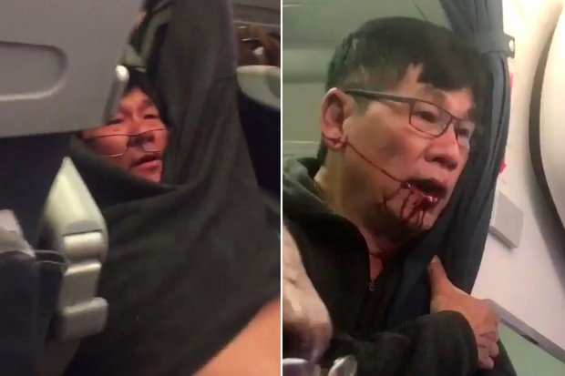 Chinese smell 'racism'; United stock hammered