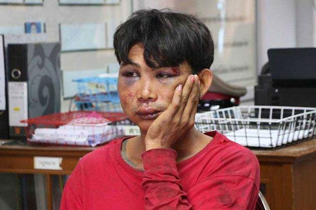 Attempted-rape suspect hospitalised